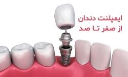 ایمپلنت دندان از صفر تا صد | سلامت